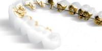 Clínica Dental Poniente Ortodoncia 6