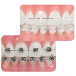Clínica Dental Poniente Ortodoncia 1