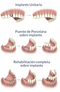 implantes-clinica-dental