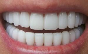 Clínica Dental Poniente Periodoncia